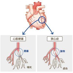 心臓の病気(心筋梗塞、狭心症)